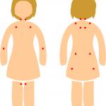 fibromyalgia kipupisteet