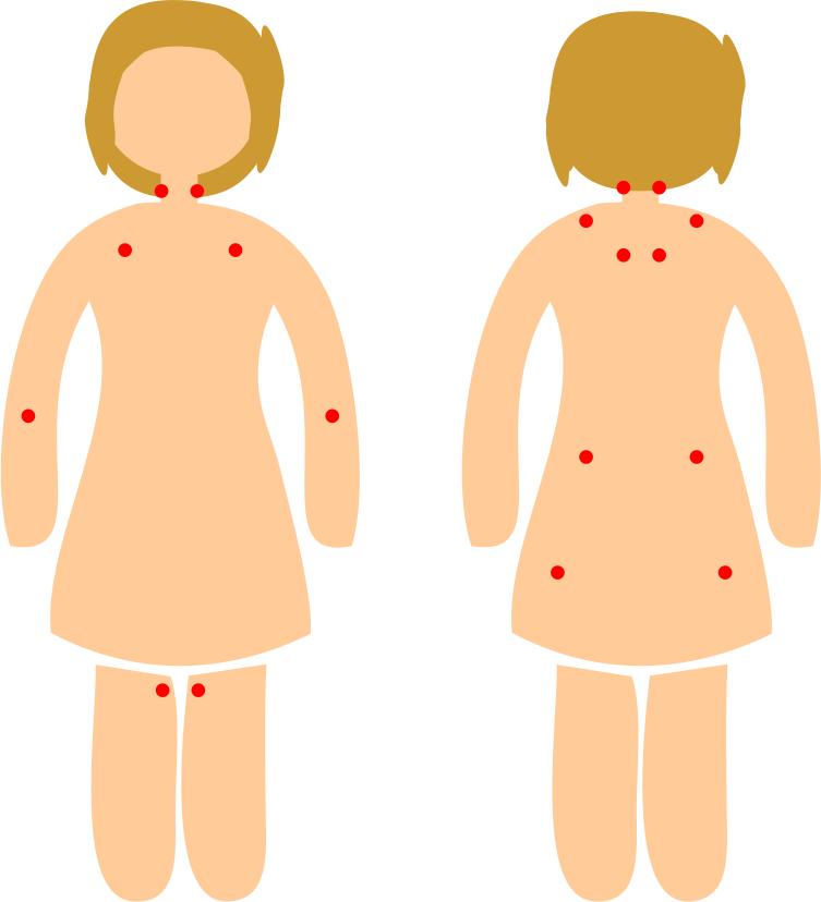 fibromyalgian kipupisteiden kartta